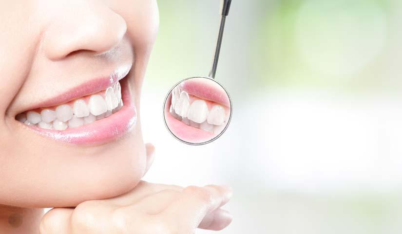 facette et dentiste