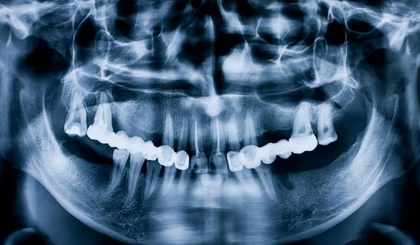 radiographie numérique - dents dentiste